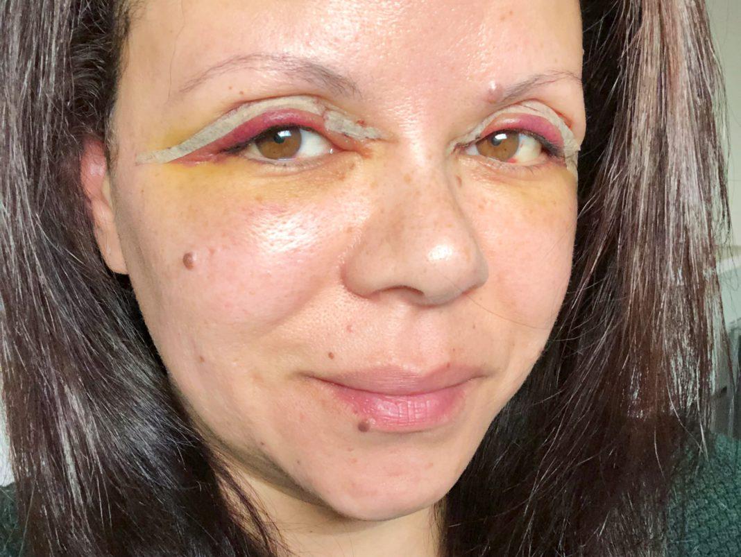 Mijn oogleden een paar dagen na de ingreep. Nog rood en ook gele verkleuring rondom mijn ogen.